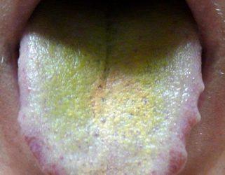 светло-зелёный налет на языке