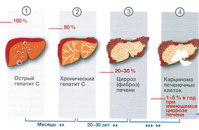 Прививка против гепатита С