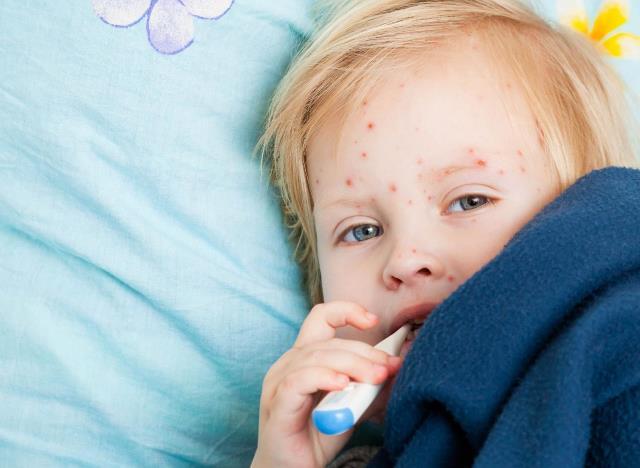 Вакцина от ветрянки для детей