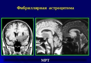 МРТ астроцитомы