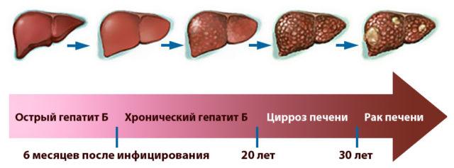 Прививка от гепатита для новорожденных