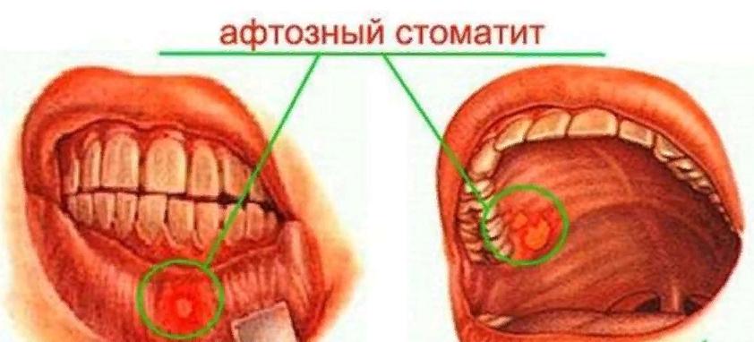 Афтозный вид стоматита