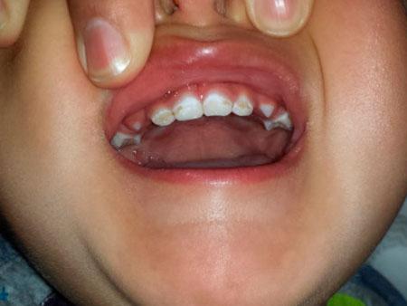 Что собой представляет гипоплазия эмали зубов у детей