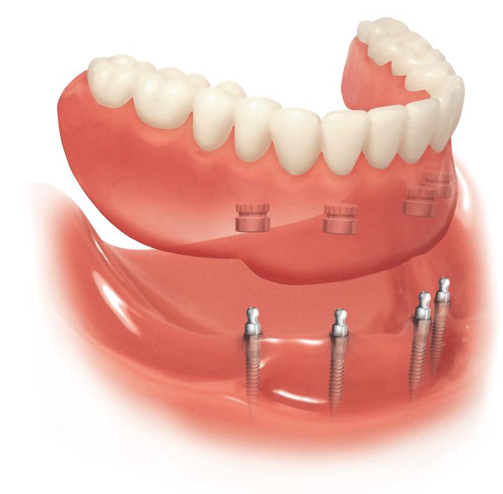 Что собой представляют условно-съемные зубные протезы