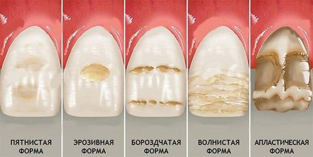 Формы гипоплазии эмали зубов