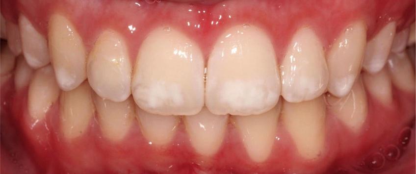 Гиперплазия зубной эмали как некариозное поражение