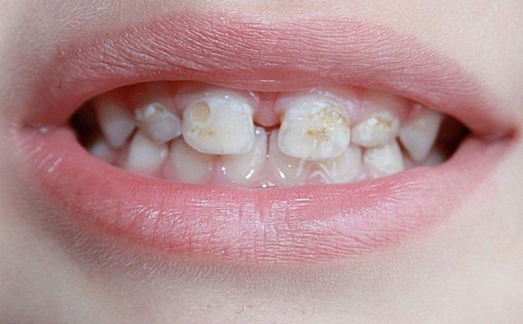 Гипоплазия зубной эмали как некариозное поражение