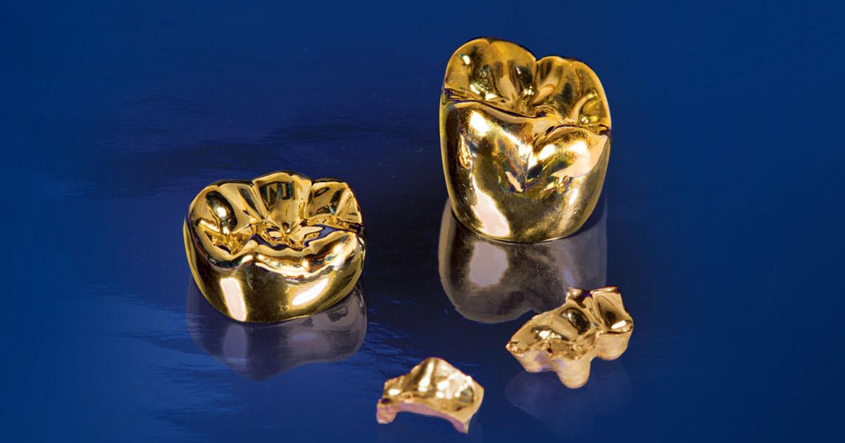 Как изготавливают золотые коронки