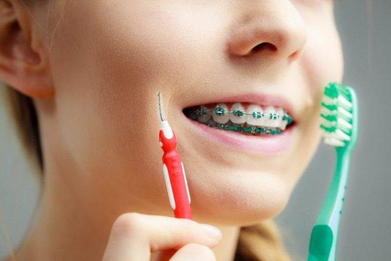 Как подобрать зубную щетку (ершик) для брекетов