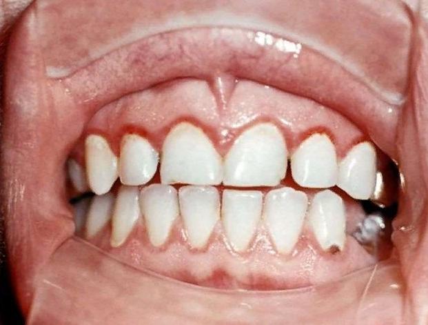 Как выглядит катаральный стоматит во рту