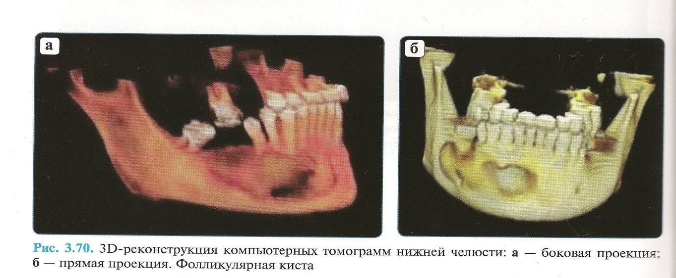 Как выглядит киста нижней челюсти