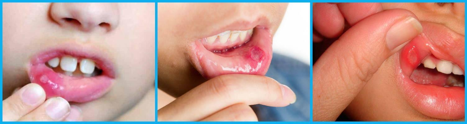 Как выглядит вирусный стоматит у ребенка