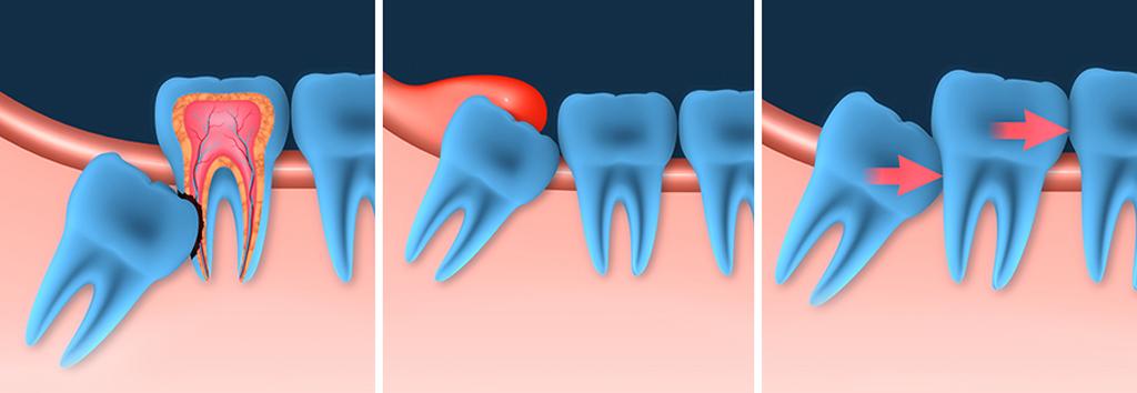 Какие могут быть причины для удаления зуба мудрости