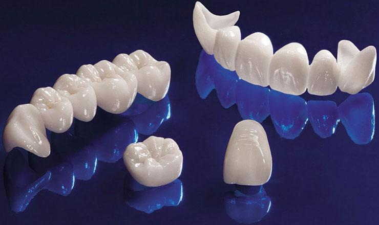 Керамика для изготовления зубных протезов