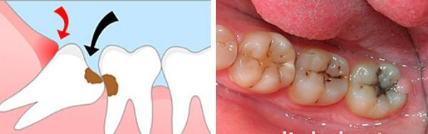 Клиническая картина кариеса зуба мудрости