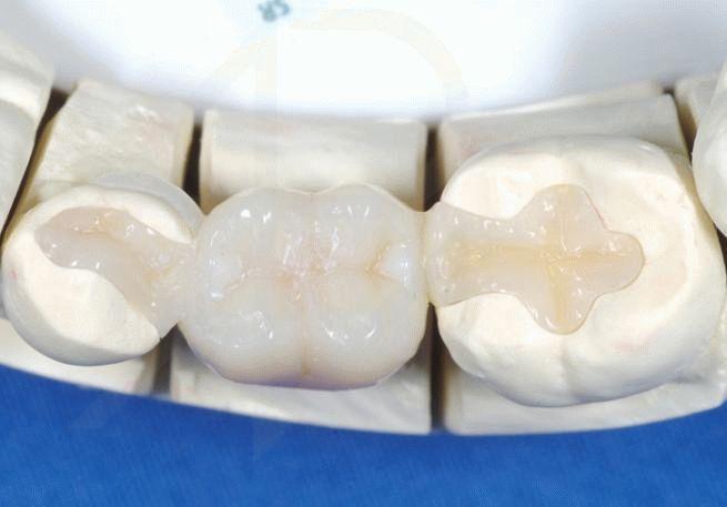 Компохит для восстановления зубов