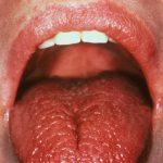Ксеростомия - сухость рта