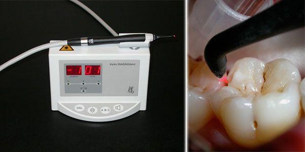 Лазерное лечения кариеса