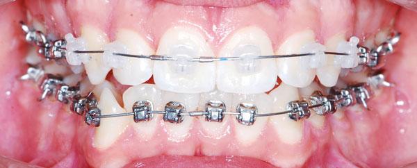 Лечение дефектов прикуса с помощью комбинированных брекет-систем