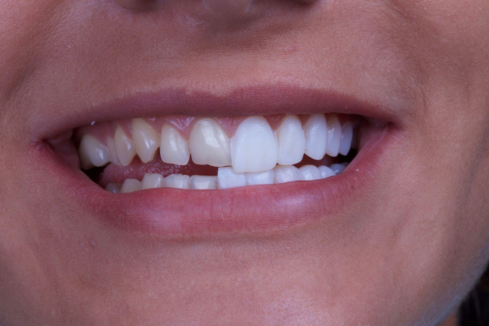 Люминиры и вениры на передние зубы
