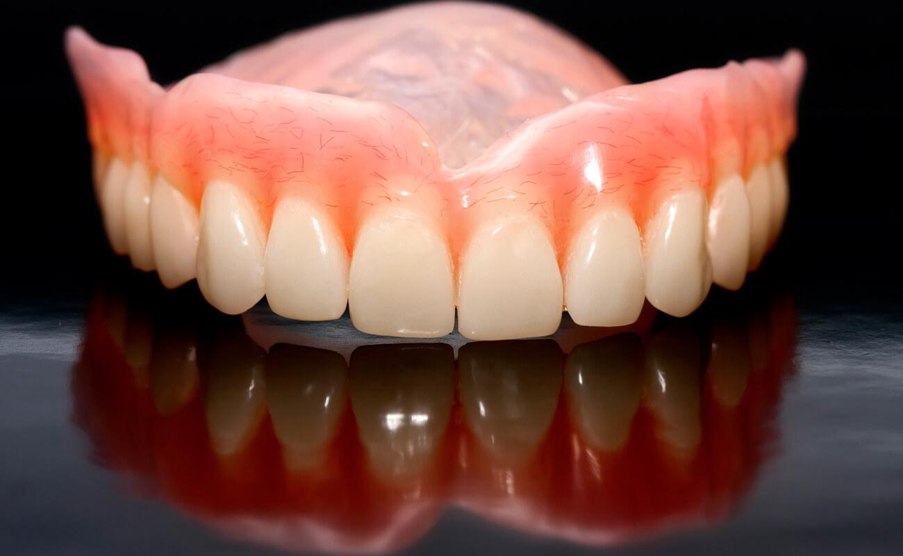 Материалы для изготовления зубных протезов на присосках