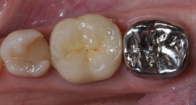 Металлическая зубная коронка