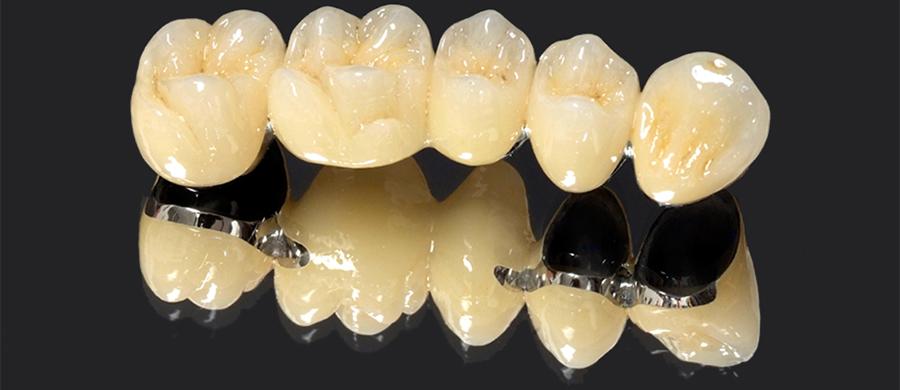 Металлокерамика для изготовления зубных протезов