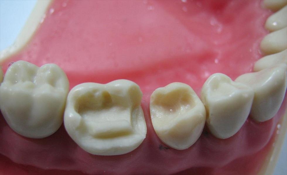 Микропротезирование зубов без обточки