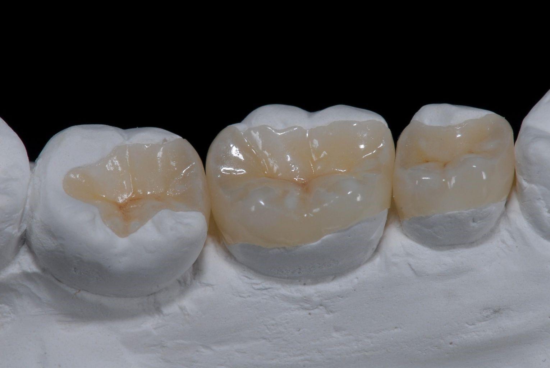 Микропротезирование зубов вкладками