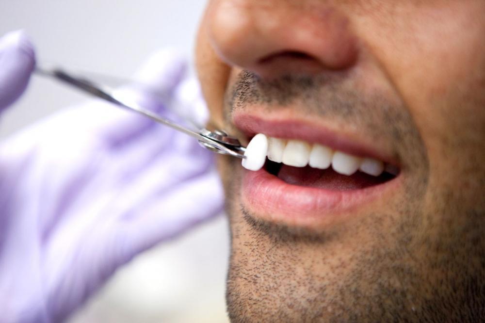 Накладки в качестве отбеливания зубов
