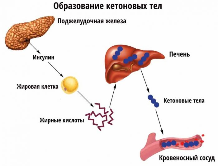 Кетоно тела