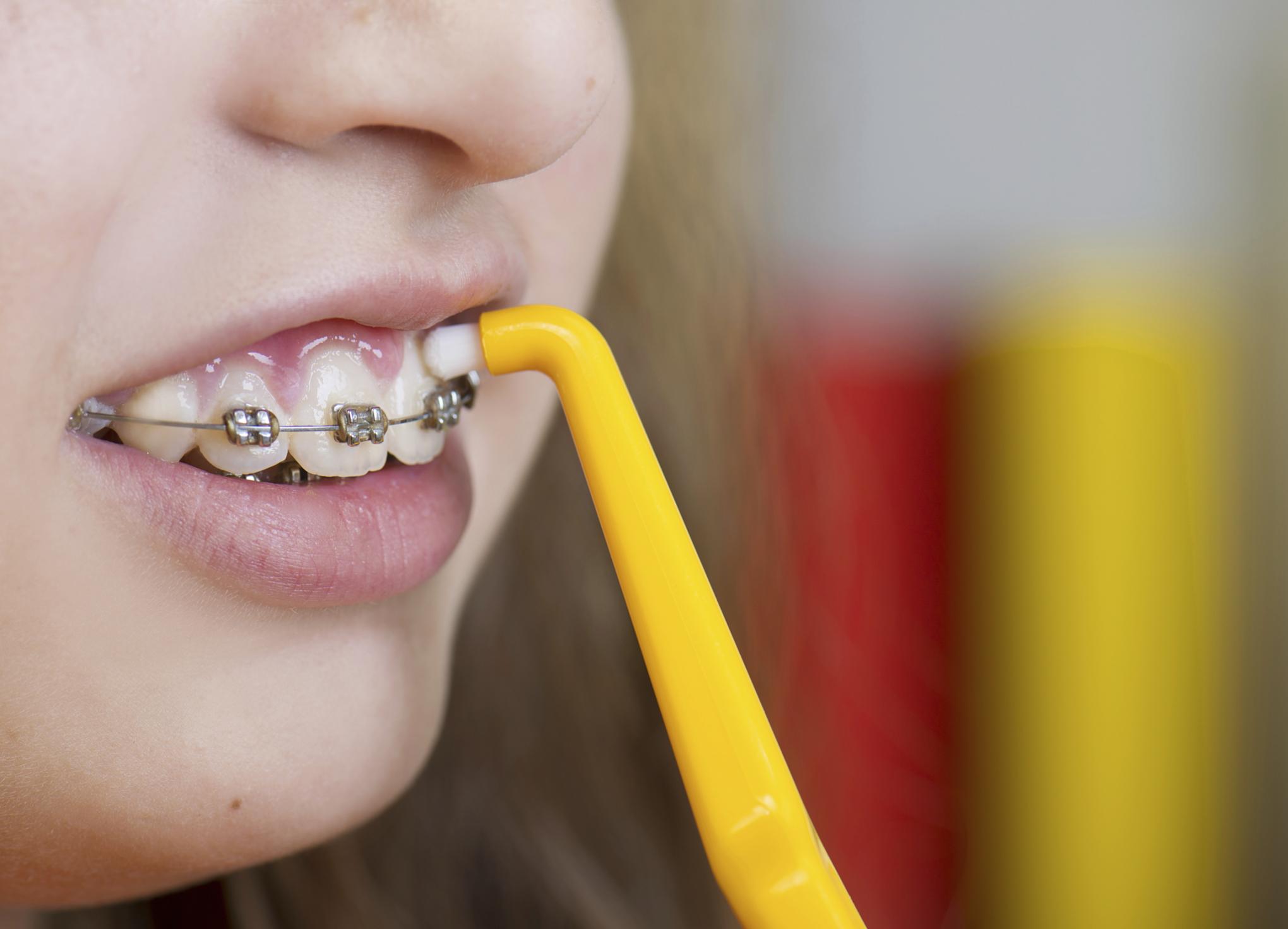 Однопучковая зубная щетка для правильной очистки брекетной системы