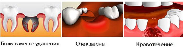Симптомы осложнений после удаления зуба мудрости