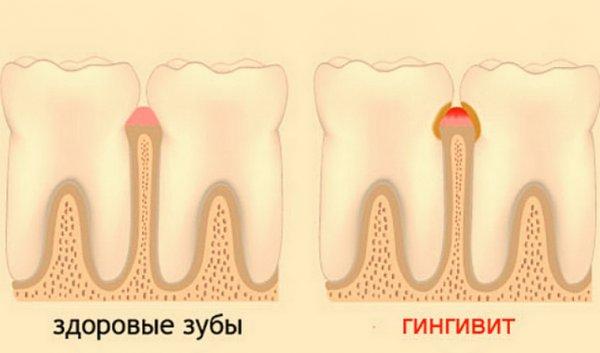 Особенности гингивита и его формы
