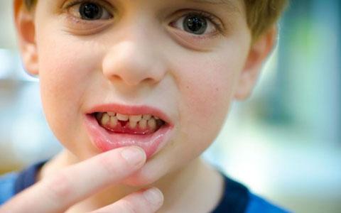 Особенности течения катарального гингивита у детей