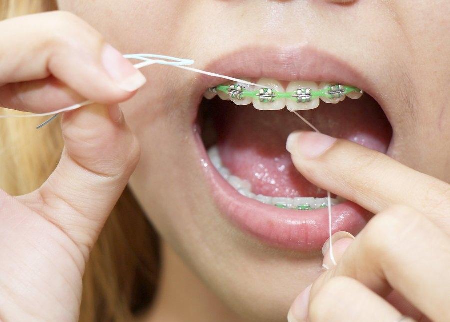 Правильная чистка зубов с брекетами зубной нитью
