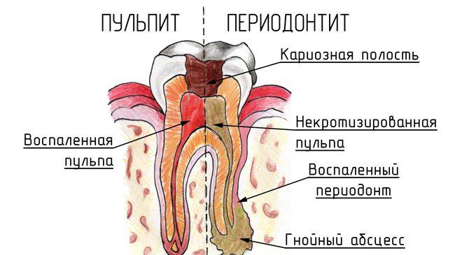схема пульпита и периодонтита