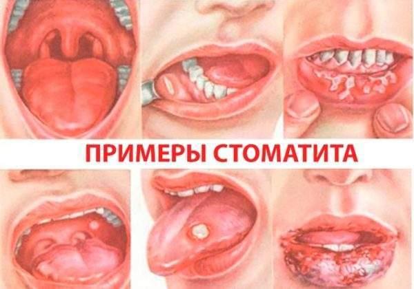 Различные типы стоматита у ребенка
