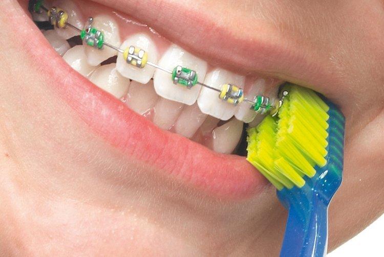 Специальная щетка для очистки брекетов и зубов