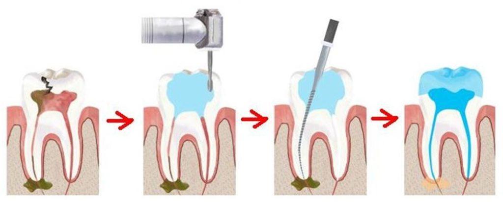 Суть депульпирования зуба