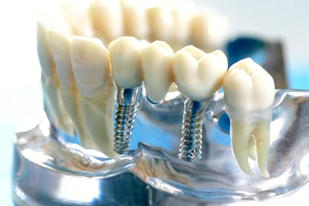 Титан для изготовления зубных имплантов
