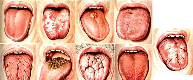 Виды аллергического стоматита