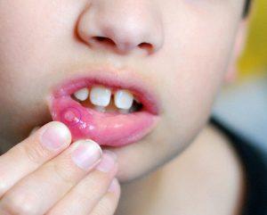 воспаление на внтуренней стороне губы