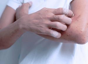 Понятие аллергической экземы: как её лечить