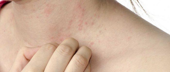 Болезни печени и аллергия