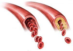 Контроль холестерина