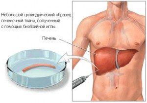 Стеатоз при гепатите С