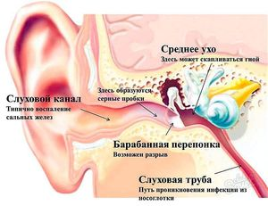Болит за ухом - что делать