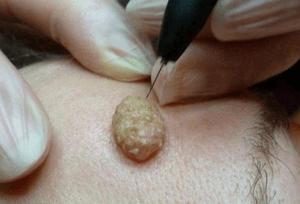 Как правильно лечить бородавчатый невус (опасность удаления)