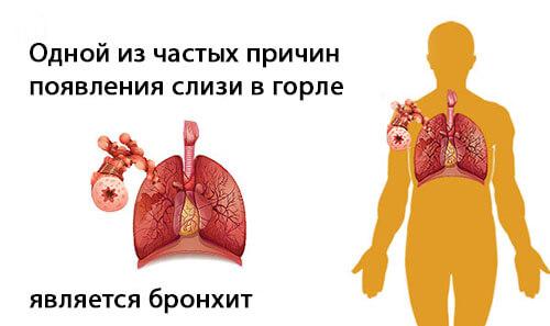 bronhit i sliz